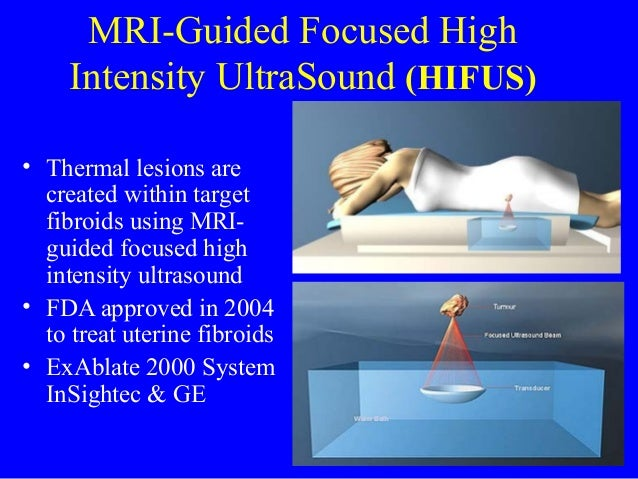 Mri guided focused ultrasound surgery for uterine fibroids