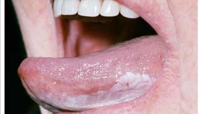 Pimple.on inside of mouth how to get rid of it